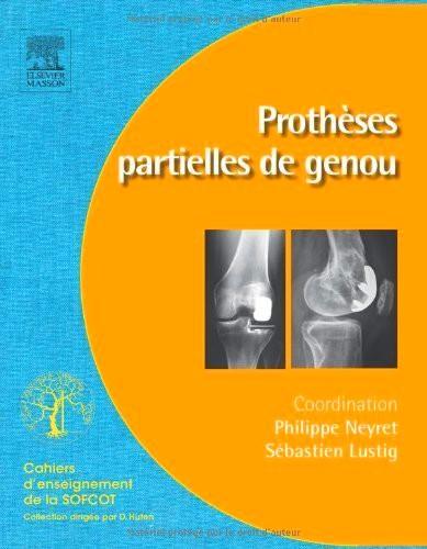 Prothèses Partielles De Genou